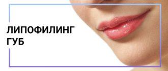 липофилинг губ