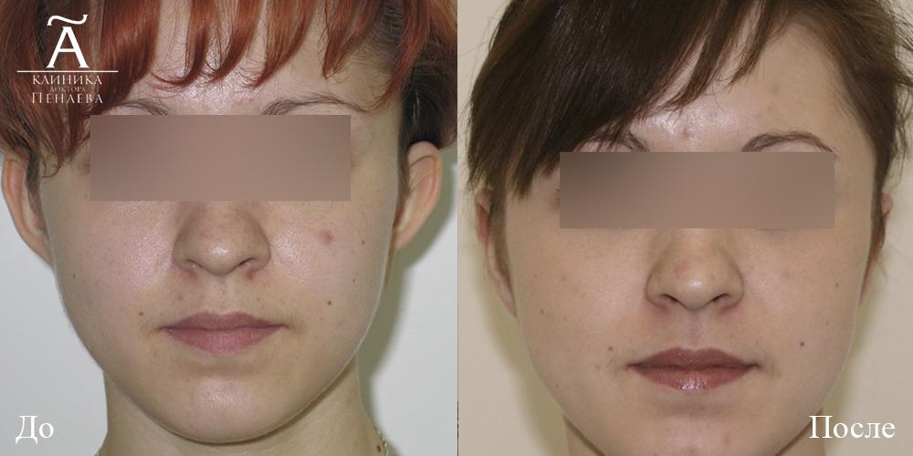 отопластика фото до и после