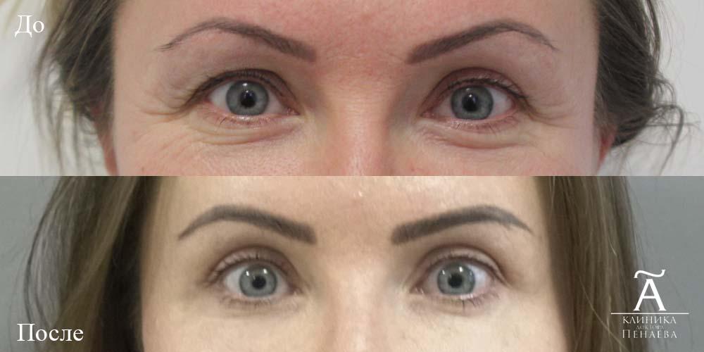 верхняя блефаропластика фото до и после