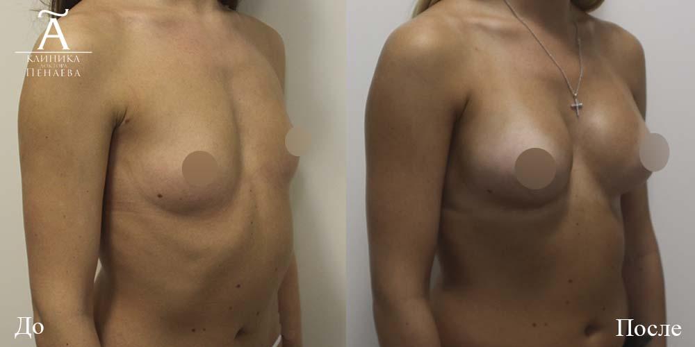 увеличение груди фото до и после