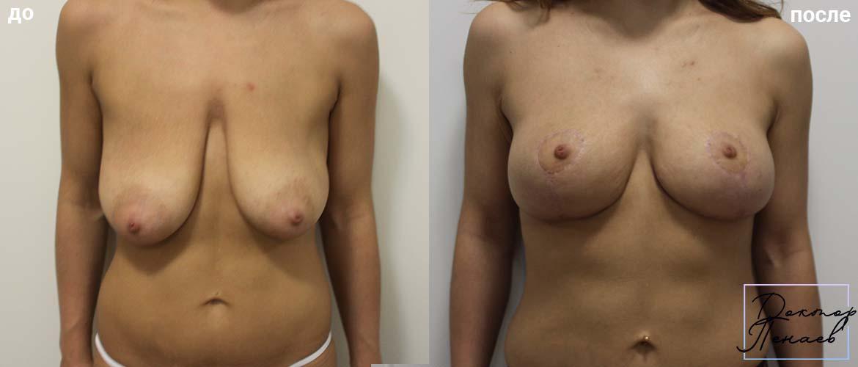 мастопексия фото до и после