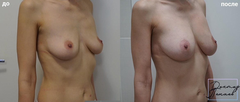 увеличение груди без имплантов фото до и после